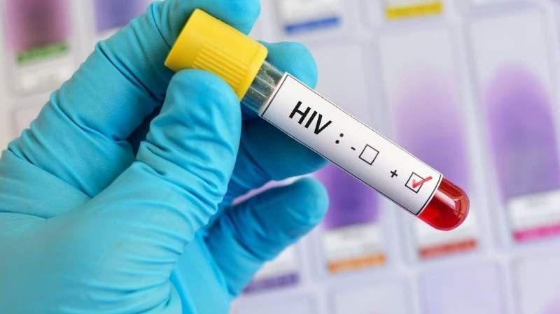 Probarán una vacuna preventiva del VIH-Sida en 600 voluntarios
