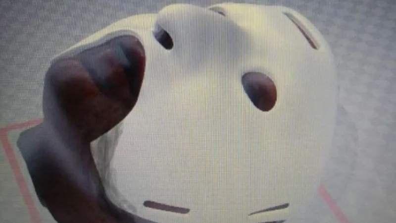 Cirujanos argentinos crearon una máscara 3D para reconstrucción facial en casos de quemaduras