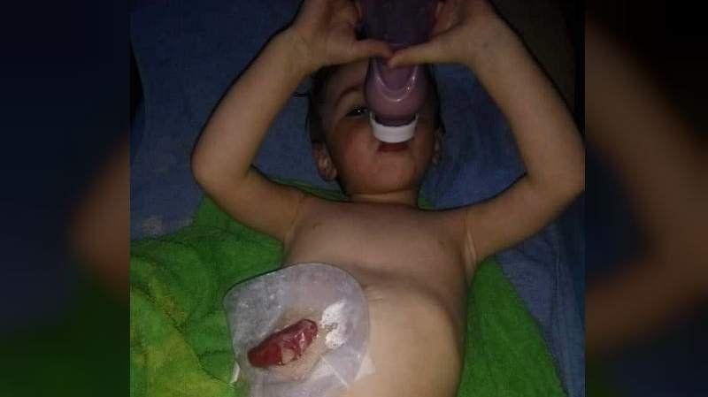 Denuncian que IOMA no autoriza una operación urgente para un nene de 2 años