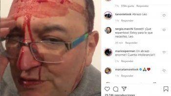 El músico Leo García fue agredido por ser gay