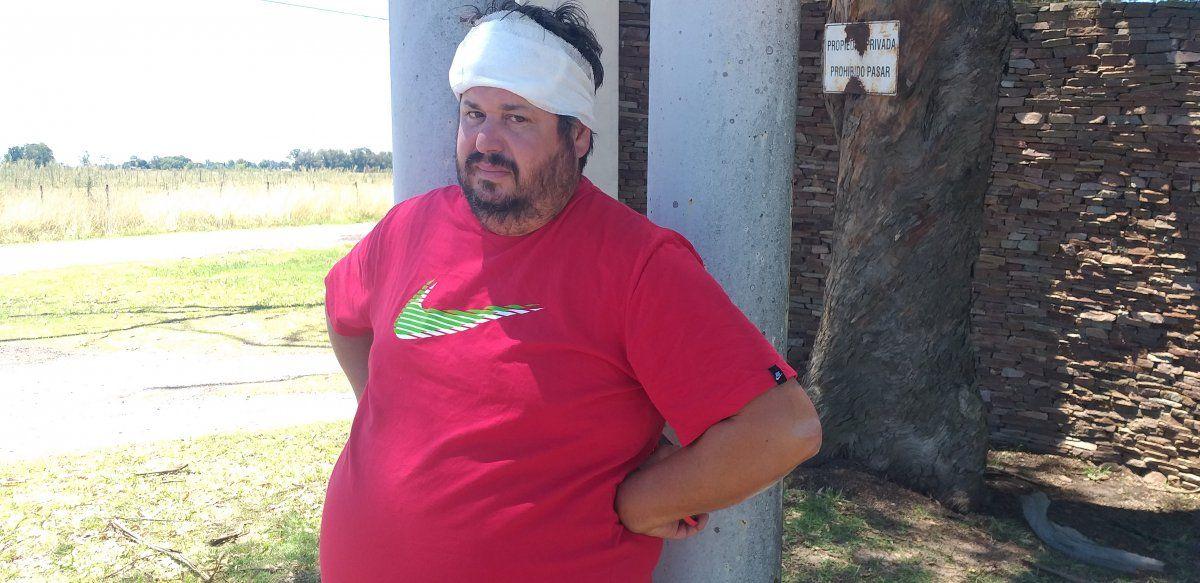 Robo en El Candil: Me dieron tres culatazos en la cabeza