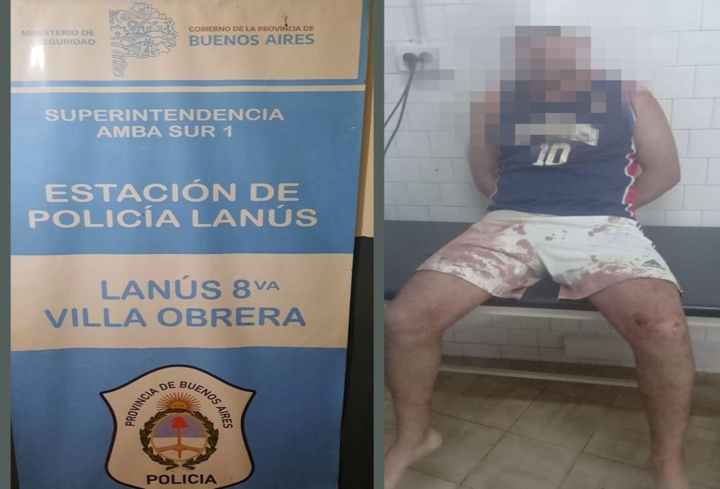 Tiroteo y ataque a la Policía en Lanús: familiares de un delincuente intentaron liberarlo