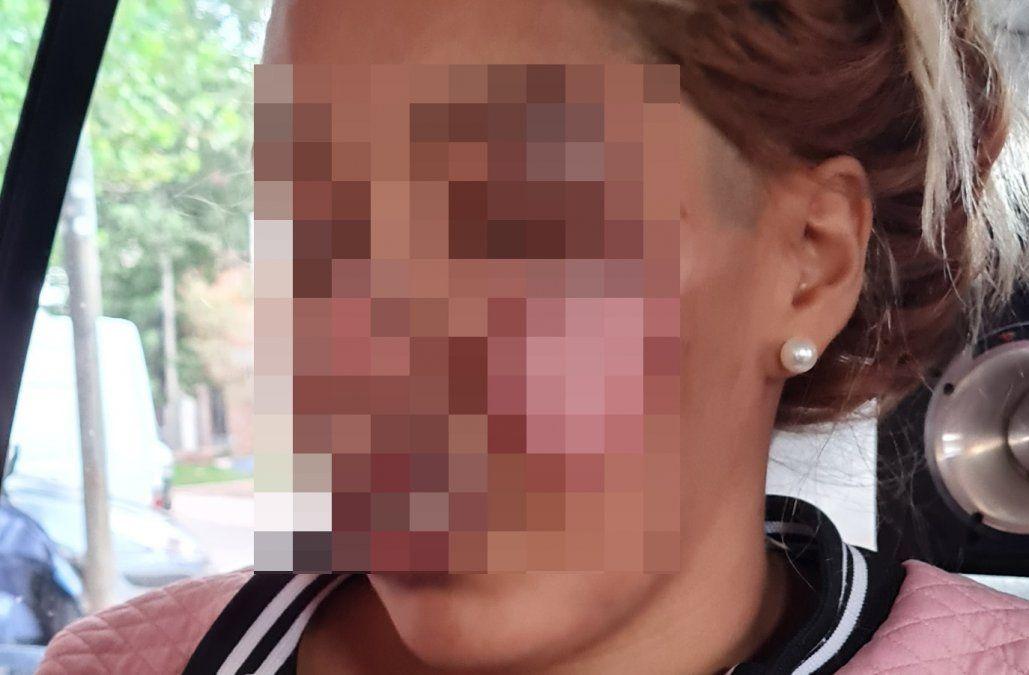 La víctima quedó gravemente herida y denunció a su novio ante la Policía.