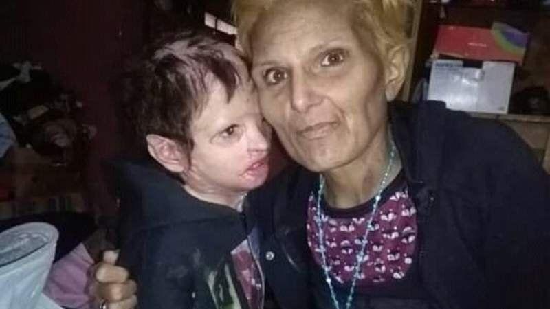 Dolor: Falleció la mamá de Aaron, el nene quemado en un incendio en Glew
